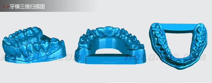 牙齿三维扫描图
