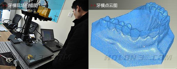 牙模三维扫描