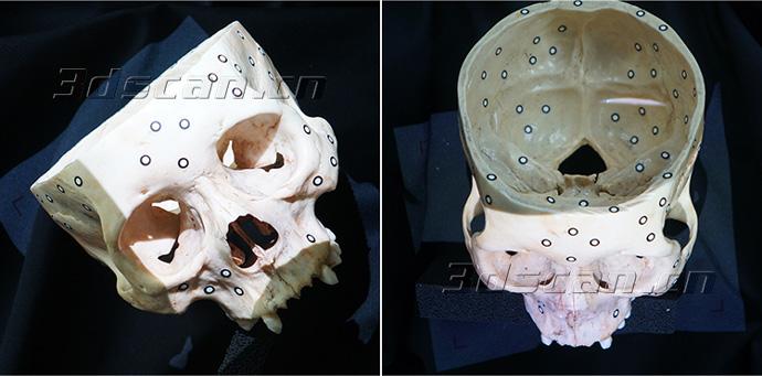 颅骨扫描现场