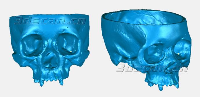 颅骨STL数据